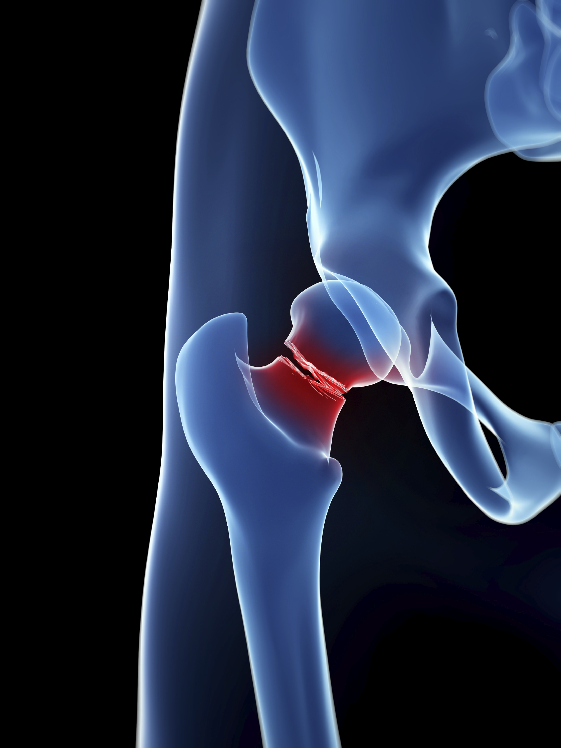 Hip Fractures Among Older Adults
