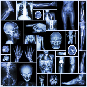 Injuries from Fractures